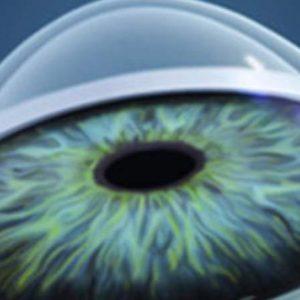 RGP Oculolens Cone su polutvrda kontaktna sočiva koja su namenjena za korekciju keratokonusa, i imaju precizni profilni dizajn.