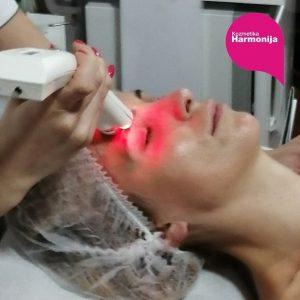 Tretman lica 2u1