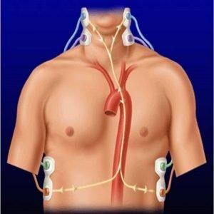 Pregled srca sa Cardioscreen aparatom
