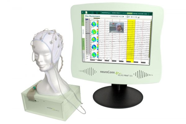 Elektroencefalografija – EEG